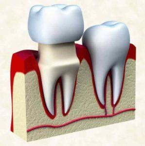 Dental Crowns Pain