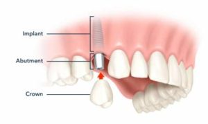 Dental Implants Front Teeth Is Tooth Implant Painful