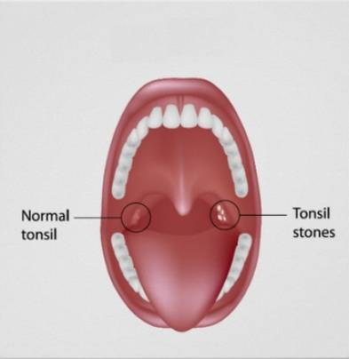 Do Tonsil Stones Cause Bad Breath