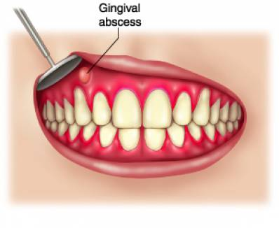 Gingival and Periodontal Abscesses and How to Treat Them