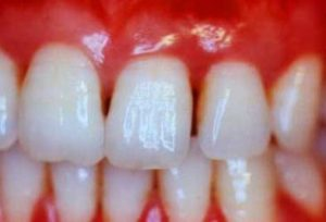 Gum Disease and How to Reduce Periodontal Pockets
