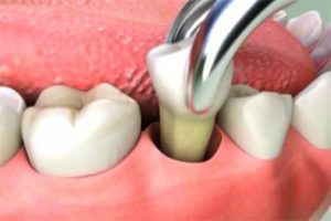 How Much Does Tooth Extraction Cost