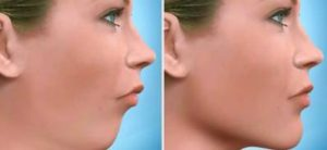 Jaw Surgery What Does Orthognathic Surgery Cost