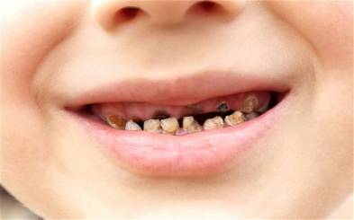 Kids Rotting Teeth What Is the Treatment for Toddlers Tooth Decay