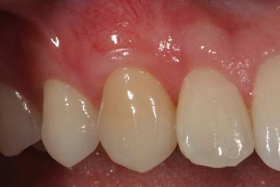 Receding Gums Graft