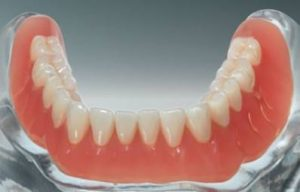 Repair Dentures, Poorly Fitting, Damaged or Broken False Teeth