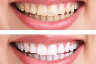 Safest Teeth Whitening Products