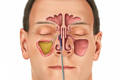 Sinus Infection Toothache Causes and Best Remedy