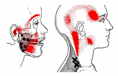 TMJ Jaw Muscle Pain and Massaging