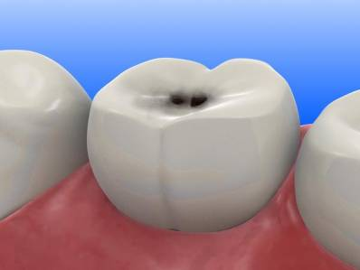 Teeth Cavities What Is Dental Caries