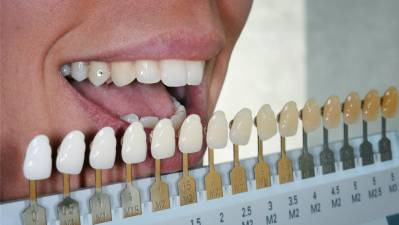 Teeth Shades and Color Chart