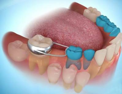 Tooth Space Maintainers What You Should to Know