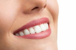 Tooth Whitening Gels Usage
