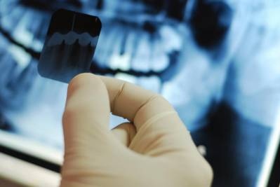 Types Of Dental X-Rays