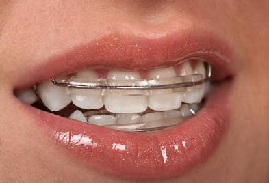 Usage of Retainers For Teeth