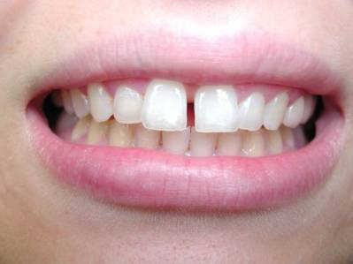 Using Teeth Bonding For Gaps Between Front Teeth