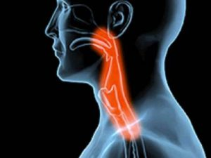 What Causes Difficulty Swallowing