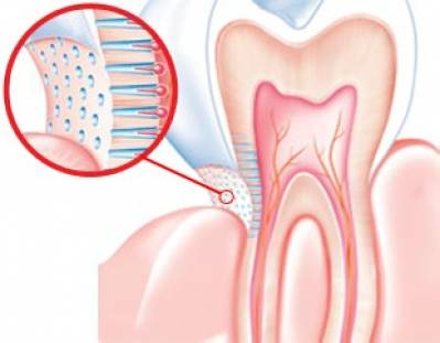 What Causes of Gum Sensitivity