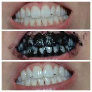 Whitening Teeth With Activated Charcoal