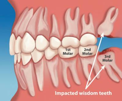 Wisdom Teeth What You Should to Know