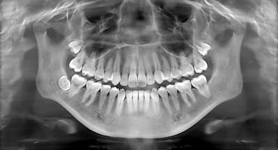 X-Rays of Teeth What You Should Know