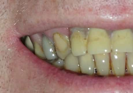 Black teeth in man