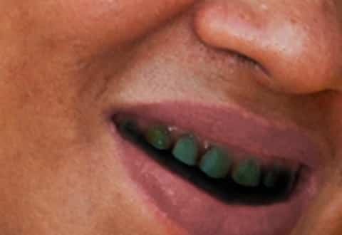 Black teeth in woman