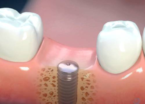 Crown or Implant