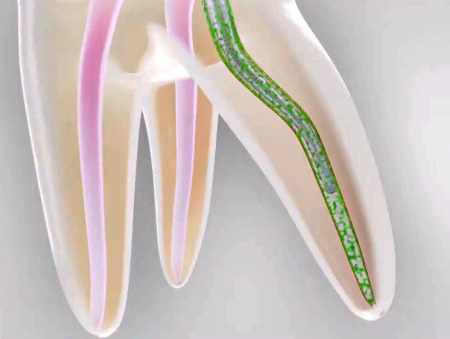 Toothache After a Root Canal Cleaning