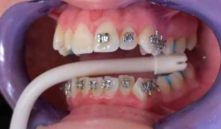 Contraindications to Wearing Braces