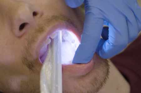 How can I get rid of black teeth