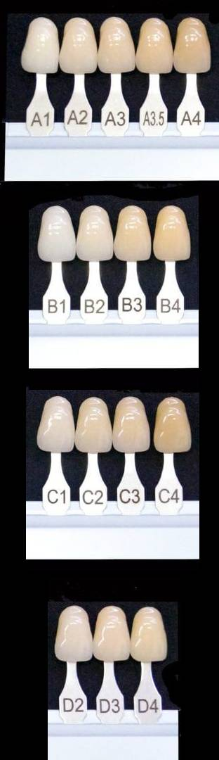 teeth chart from A1 to D4